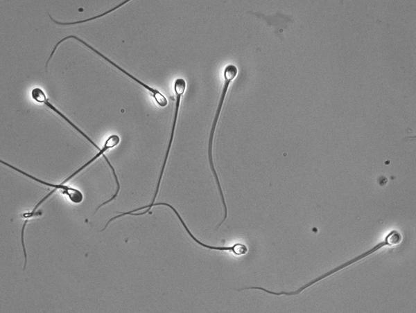 eritrotsiti-v-spermogramme