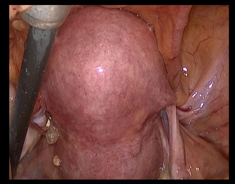Виды операция по удалению миомы